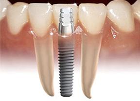 implant dentaire pas cher, implant bagnolet, implant les lilas