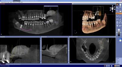 Scanner dentaire Courbevoie